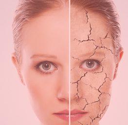 organic natural dry skin